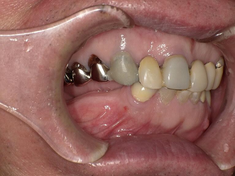 咬み合わせ治療の症例7