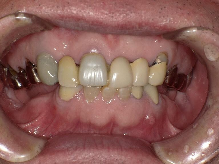 咬み合わせ治療の症例8