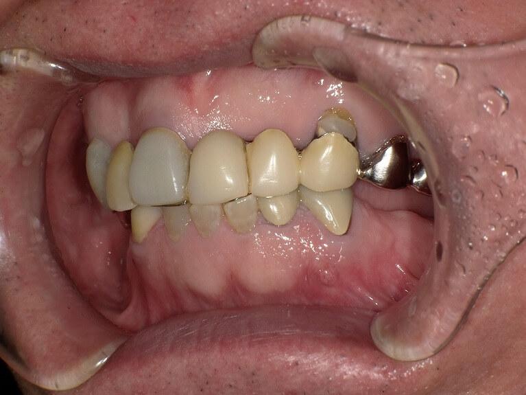 咬み合わせ治療の症例9