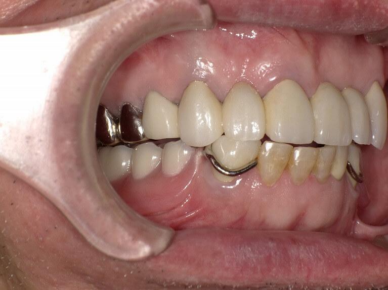咬み合わせ治療の症例2