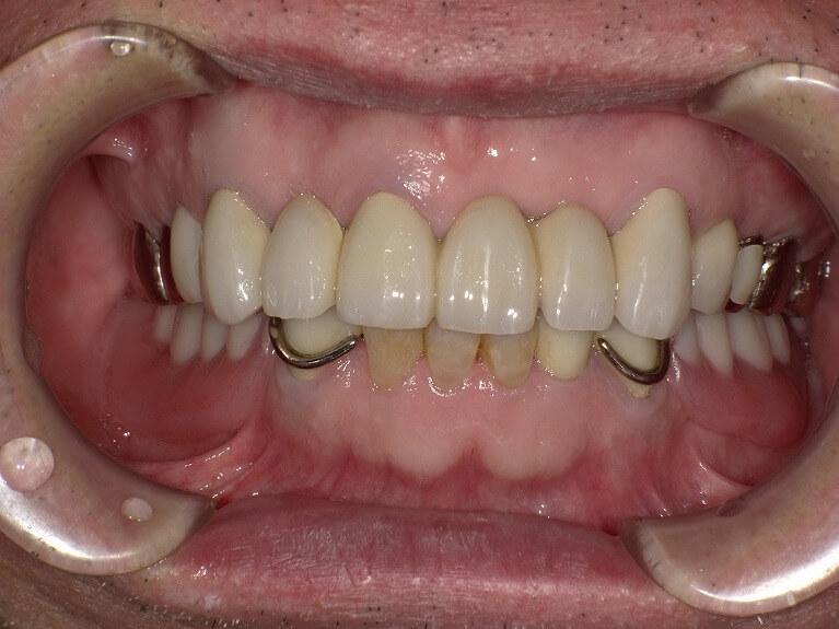 咬み合わせ治療の症例3