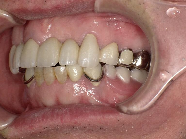 咬み合わせ治療の症例4