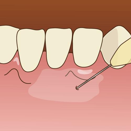 痛みを抑えた虫歯治療は大阪市生野区のつばさデンタルクリニック