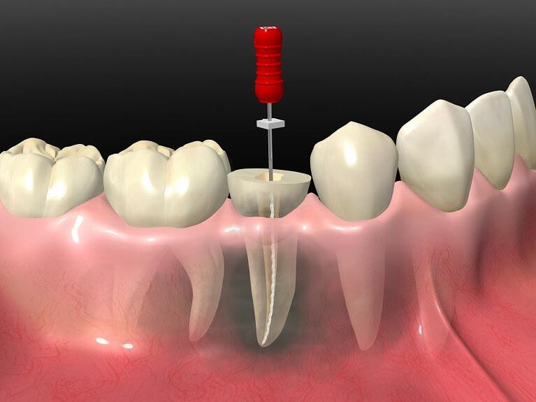 大阪市生野区のつばさデンタルクリニックでは、できるだけ歯を残す治療を心がけています。
