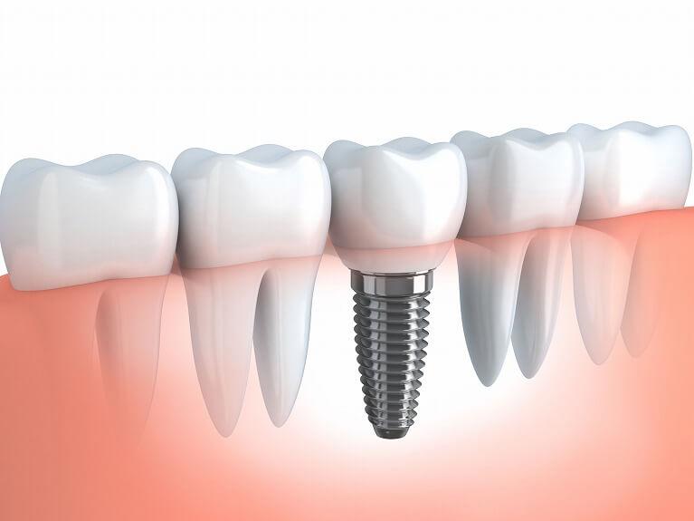 天然歯と同様の嚙み心地を取り戻すインプラント治療なら生野区のつばさデンタルクリニック