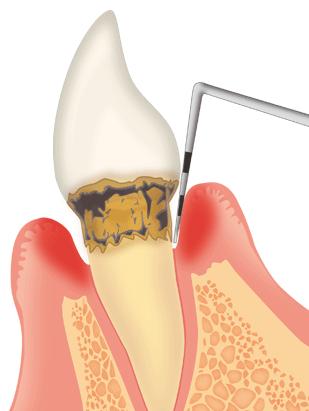 歯周ポケット深くなっていませんか?