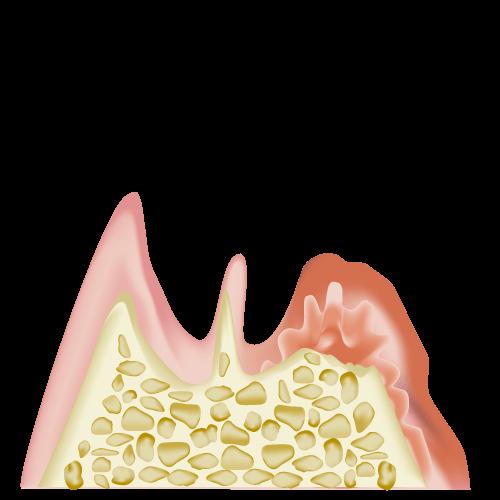 歯周病は放置すると最終的には歯が抜けてしまいます